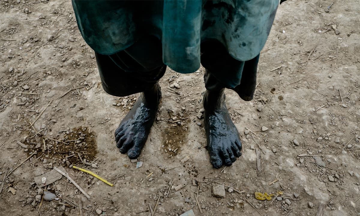 A boy's feet covered in sludge from Manchar Lake