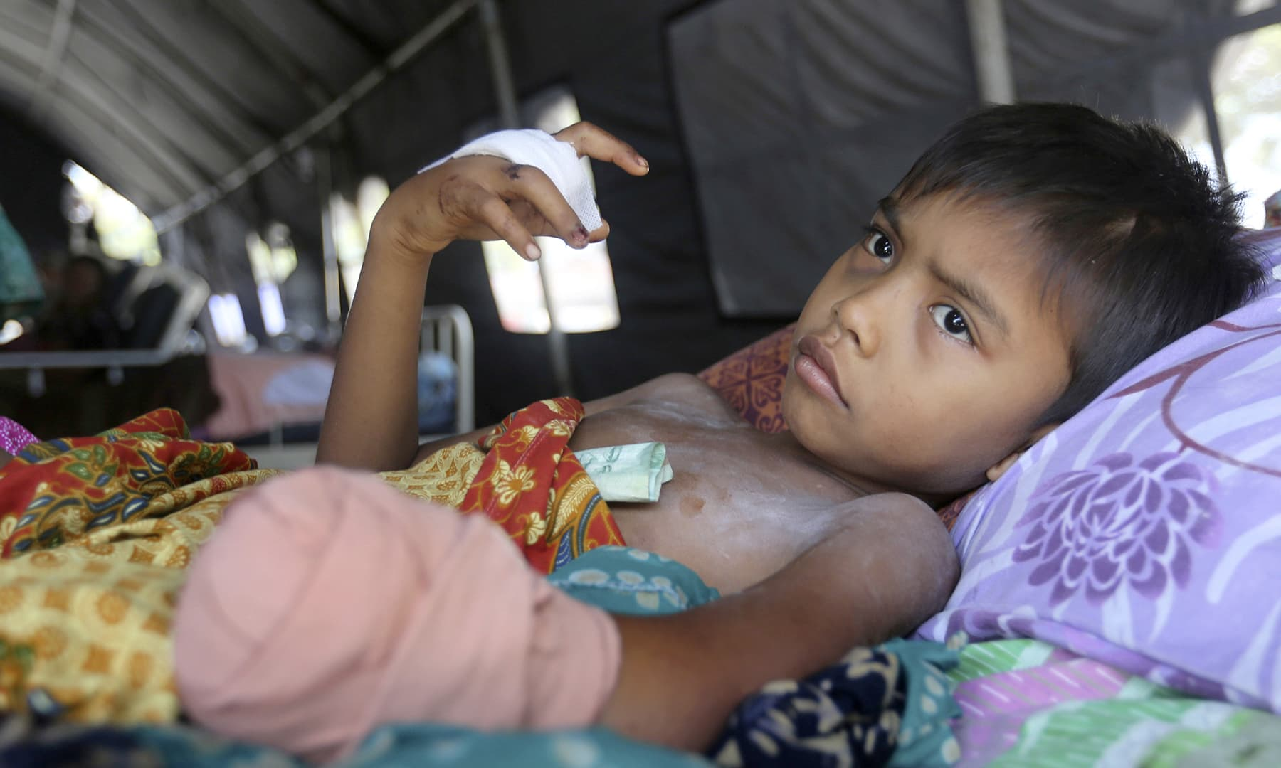 A child injured in an earthquake recovers at a makeshift hospital in Palu, Central Sulawesi Indonesia. — AP