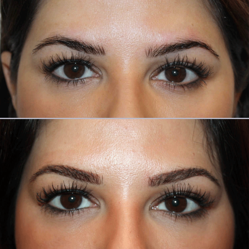Eyebrow microblading. Photo: Shinoayderm.com