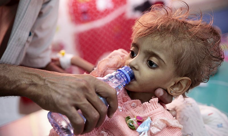 In this Thursday, Sept 27, 2018, file photo, a father gives water to his malnourished daughter at a feeding centre in a hospital in Hodeida, Yemen.  —AP