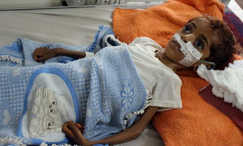 Over 7 million Yemeni children face food insecurity: UNICEF