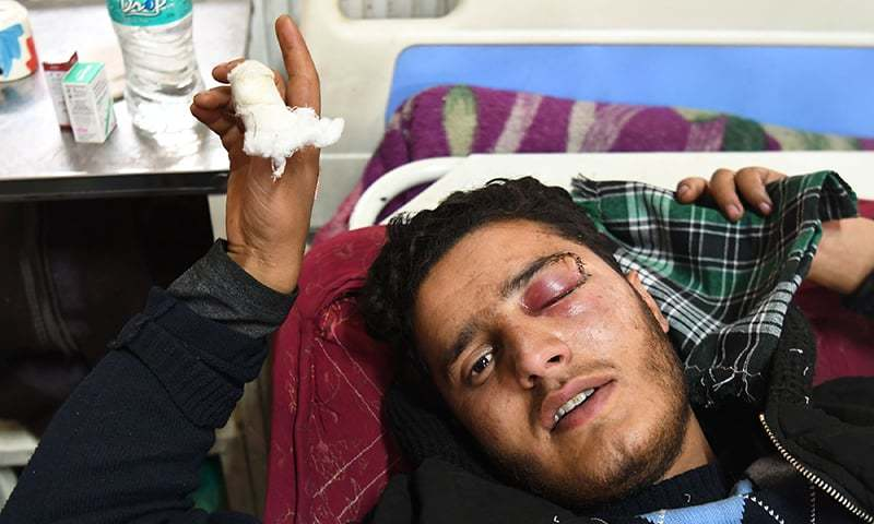 Shahid Ahmad, 16, resting on a bed in Srinagar's main hospital after his left eye was damaged by pellet gun fired by Indian government forces. — AFP