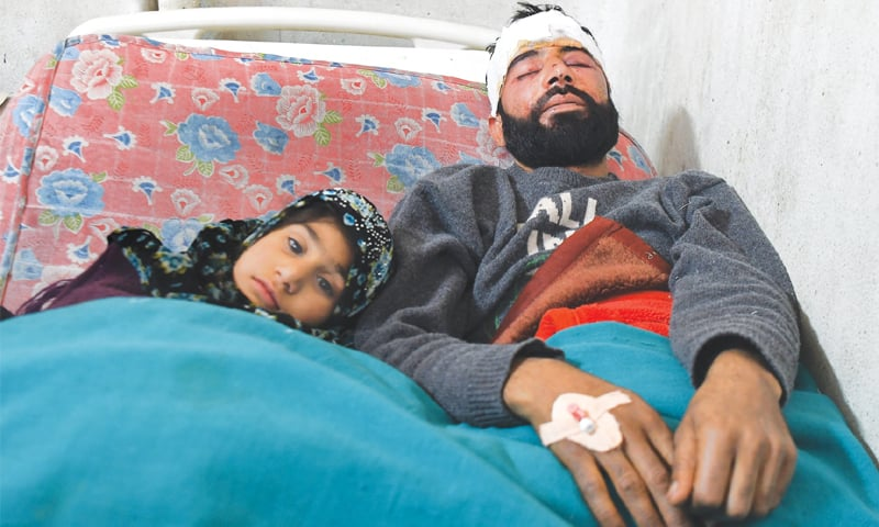 Pellet guns kill, blind and enrage people in India-held Kashmir