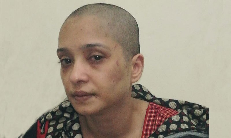 A Lahori woman has accused her husband and his employees of allegedly stripping her, shaving her head and beating her over not dancing for them. ─ Photo courtesy Amnesty International South Asia Twitter