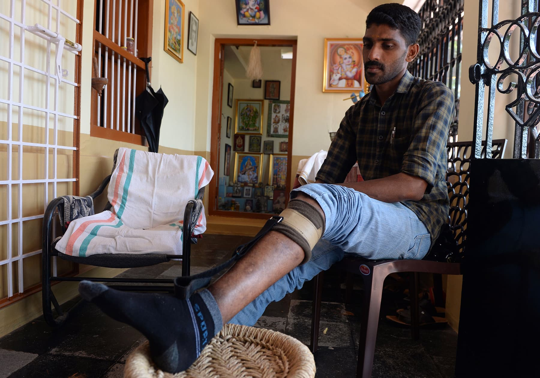 Praveen K.K., 36, a member of the Rashtriya Swayamsevak Sangh (RSS) and a political attack victim, shows his leg that was injured in political violence, during an interview with AFP at Thalaserry in the southern Indian state of Kerala. — AFP