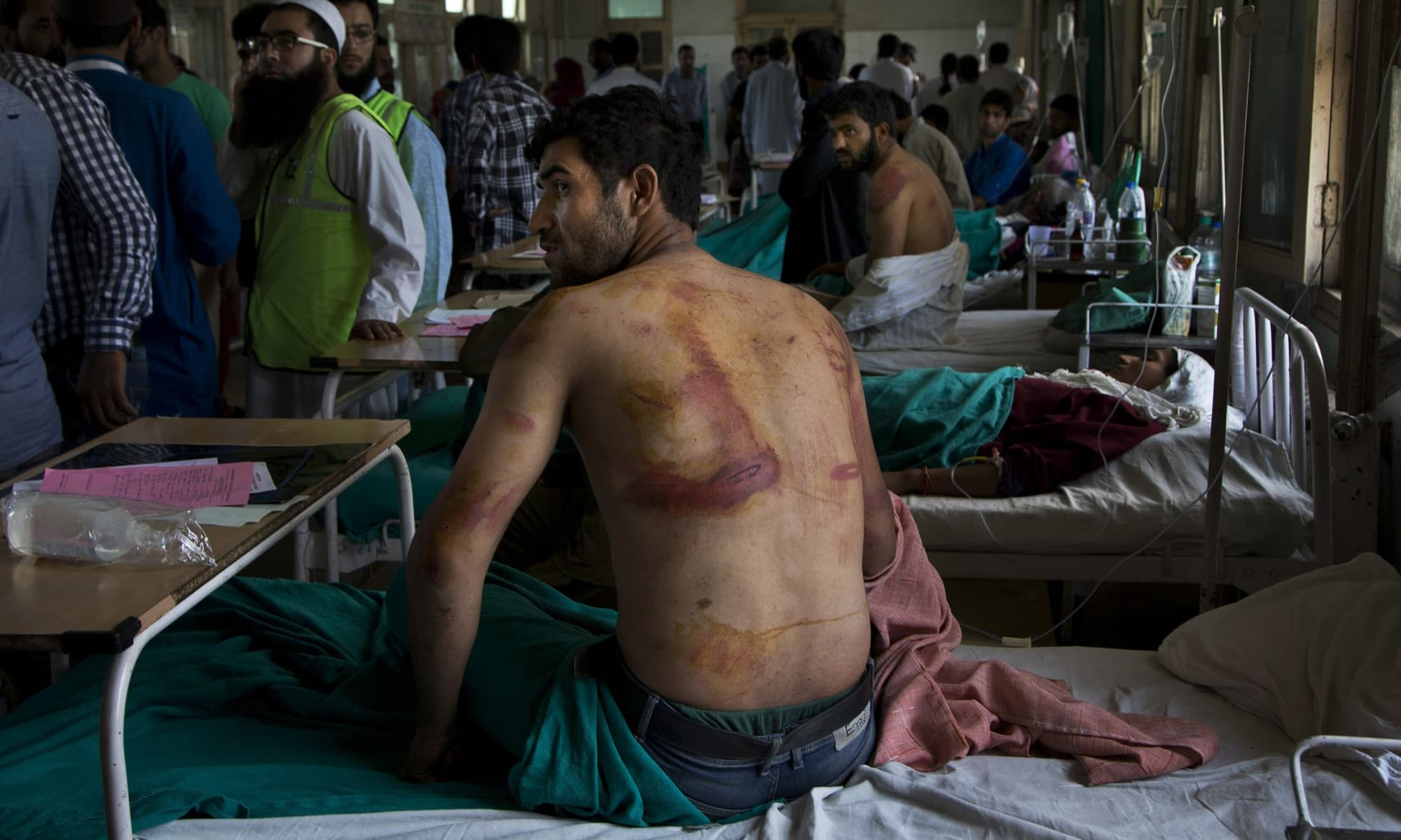 In this August 18, 2016 file photo, Sameer Ahmed, a Kashmiri man allegedly beaten up by Indian soldiers at Khrew village, recovers at a local hospital in Srinagar. — AP