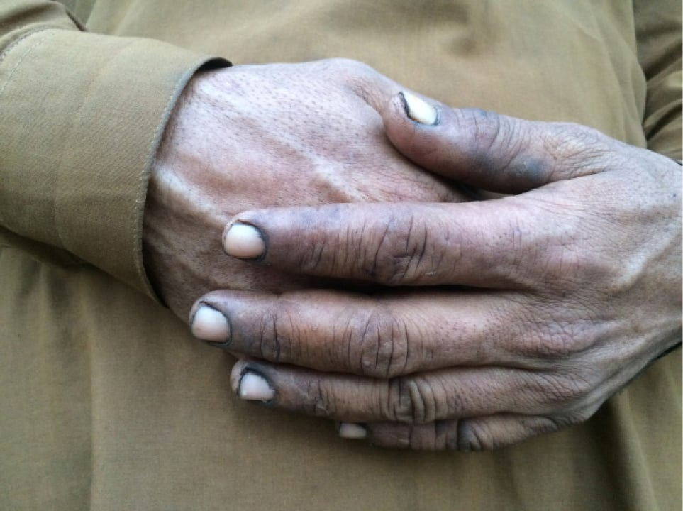 Soot depositsed in the nails of a miner | Photo by Aurangzaib Khan