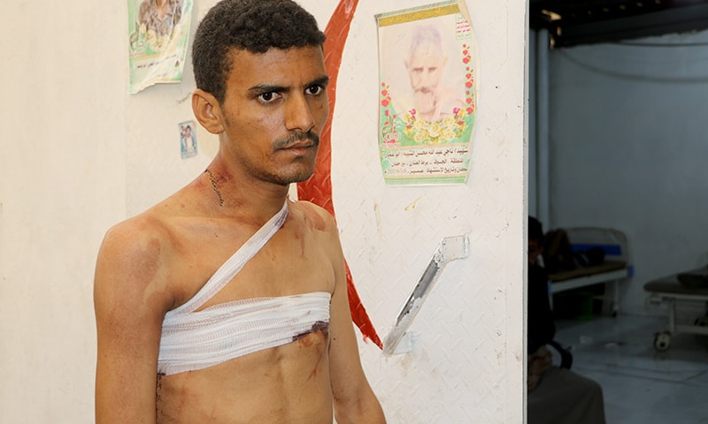 A man injured by an air strike on a market in Yemen's Saada province is seen at local Al Jomhouri hospital in Saada, Yemen on July 29. — Reuters