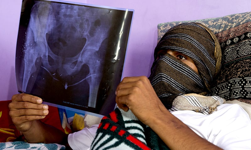 A Kashmiri youth who was injured in a protest last week holds up an x-ray showing pellet injuries in his thigh as he recovers at his home in Srinagar. ─ AP