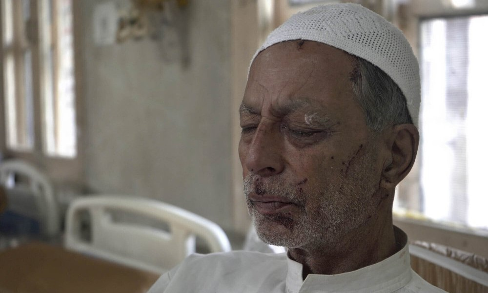 Mohammad Siddiq, 70, who was wounded a day before recovers inside a hospital in Srinagar on Sunday. The elderly Kashmiri man says he was wounded when an Indian police man fired a pellet gun at him while returning home from a mosque, badly damaging his left eye. — AP