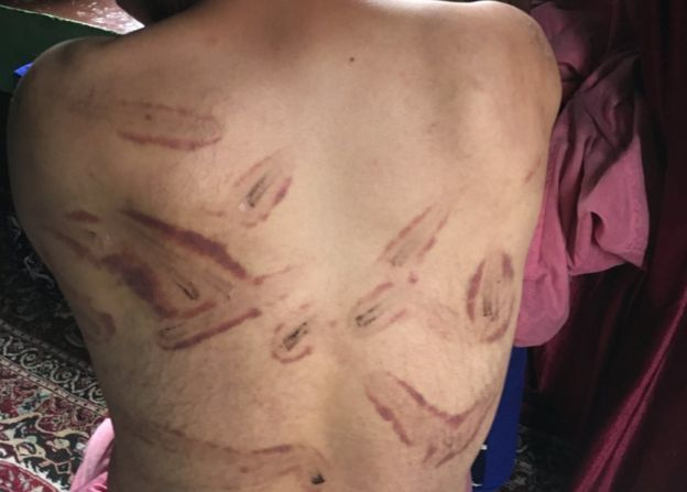 People in occupied Kashmir have accused Indian security forces of carrying out beatings and torture. ─ Photo courtesy BBC