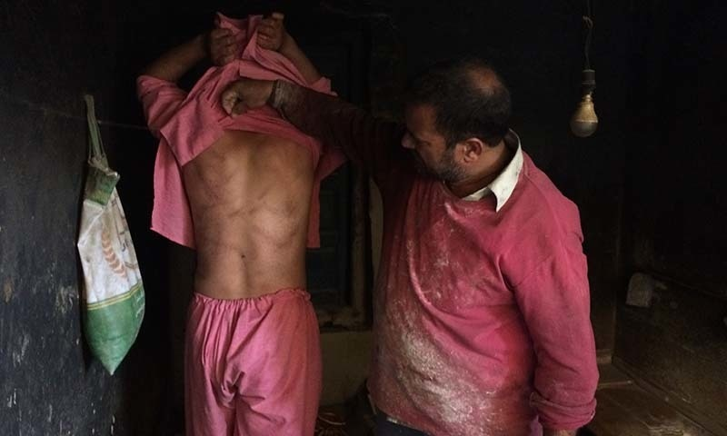 In this August 26 photo, a Kashmiri baker Sonaullah Sofi lifts the shirt from his son's back to show torture marks allegedly caused by Indian army soldiers at their bakery in southern village of Parigam in occupied Kashmir. — AP