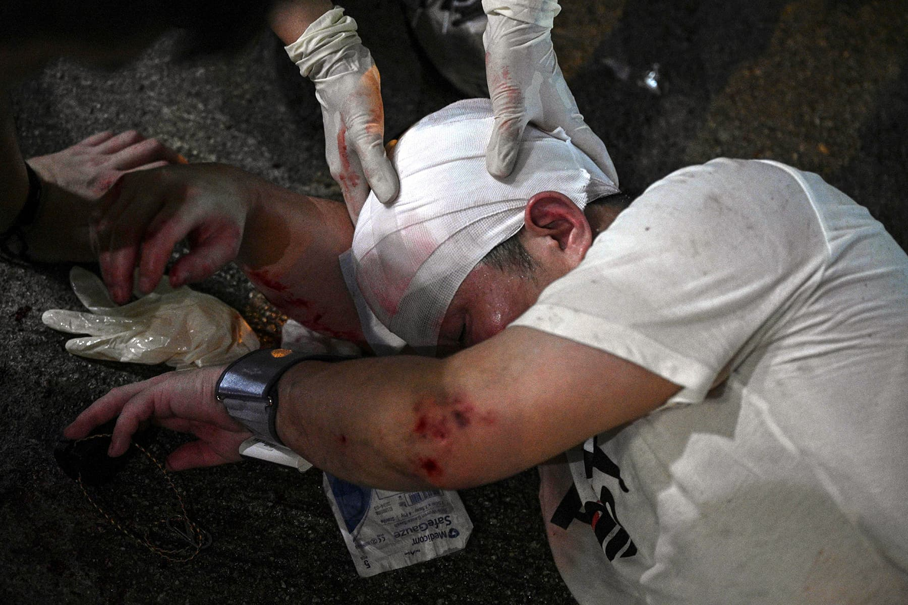 A wounded man is helped by volunteer medics after a street brawl in Fortress Hill in Hong Kong on Sunday. — AFP
