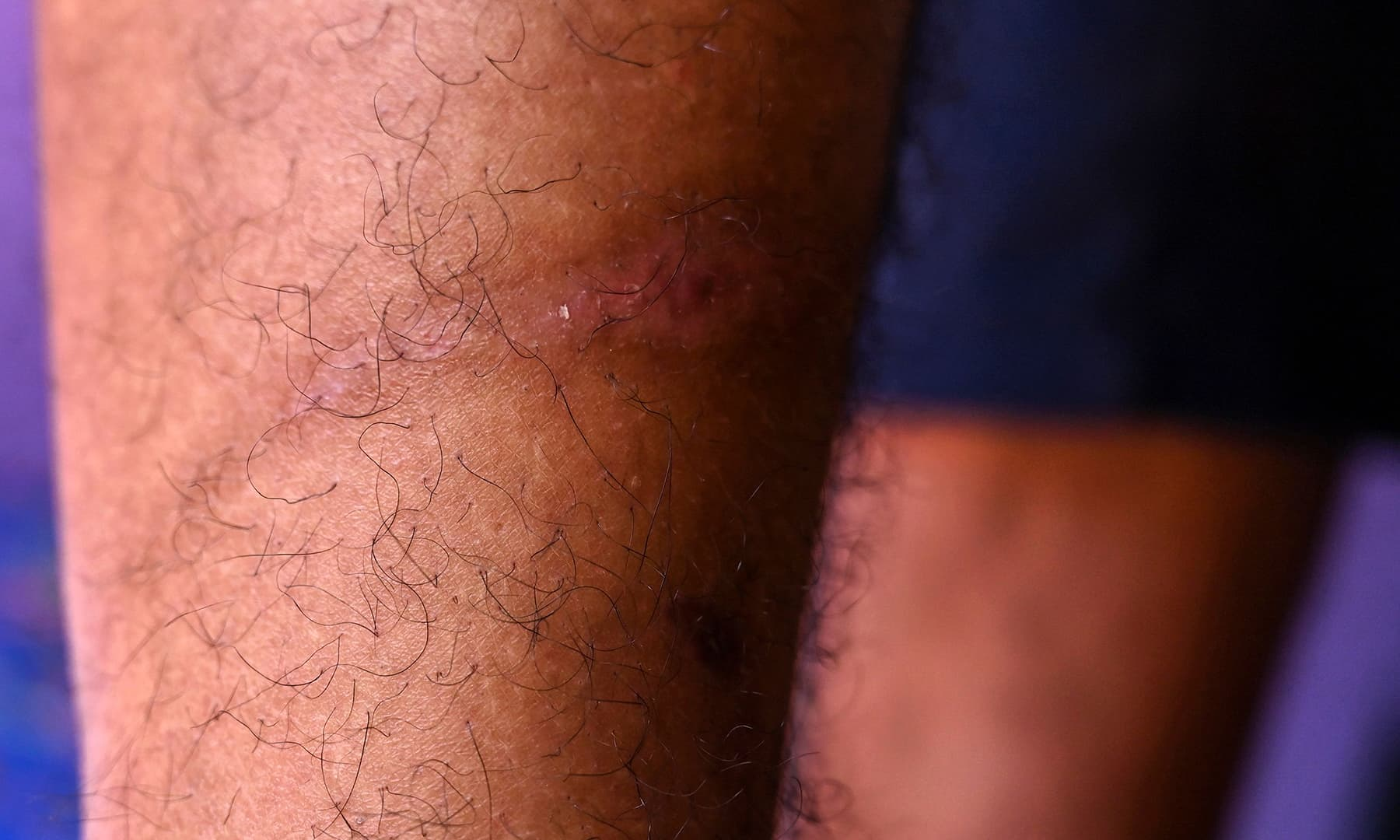 In this photograph taken on September 12, Abid Khan, 26, shows marks of torture on his leg during an interview with *AFP* at Haripora village in Shopian district, in occupied Kashmir. — AFP