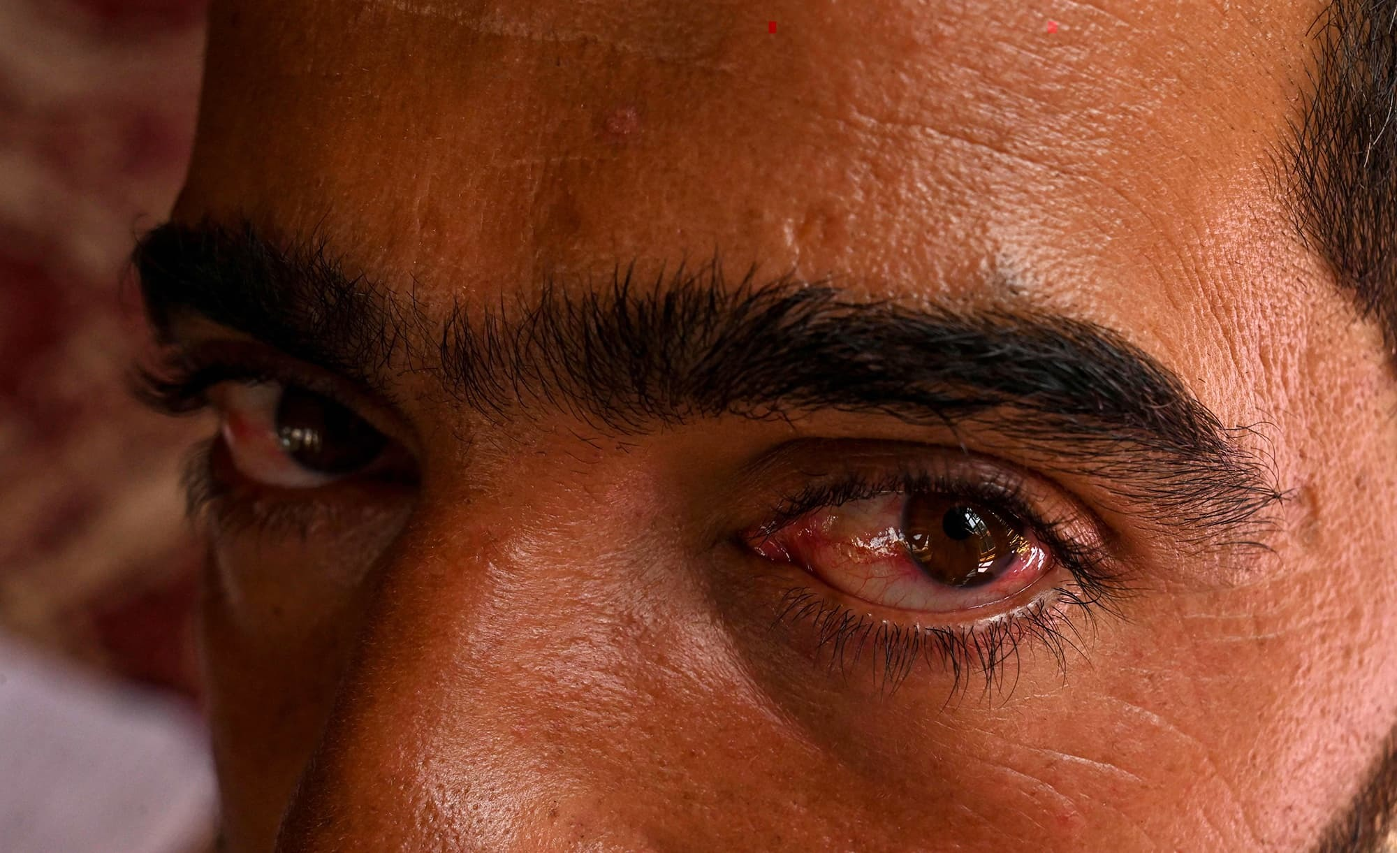 عابد خان کو بجلی کے جھٹکے لگائے گئے اور مردانہ صلاحیت سے محروم کرنے کی دھمکیاں دی گئیں—فوٹو:اے ایف پی