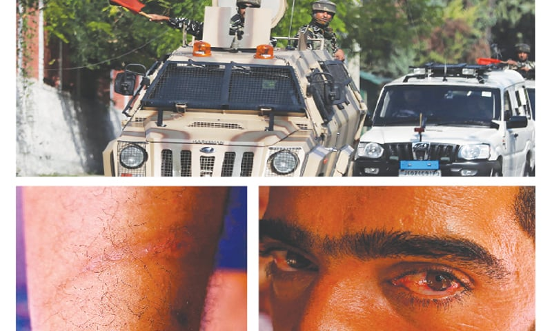 (Clockwise): Indian paramilitary personnel move in armoured vehicles outside the residence of National Conference president Farooq Abdullah in Srinagar on Monday. In the other photos taken on Sept 12, Abid Khan looks on with his bloodshot eyes and shows marks of torture on his leg.—Agencies