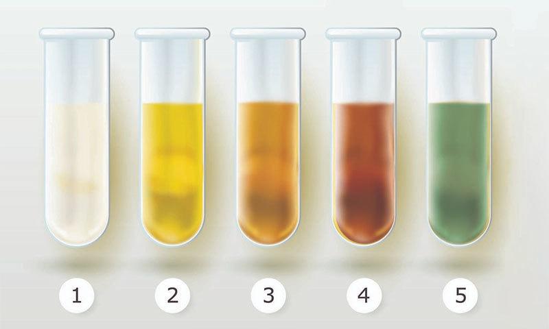 پیشاب کی کس رنگت پر ڈاکٹر سے رجوع کرنا چاہیے؟