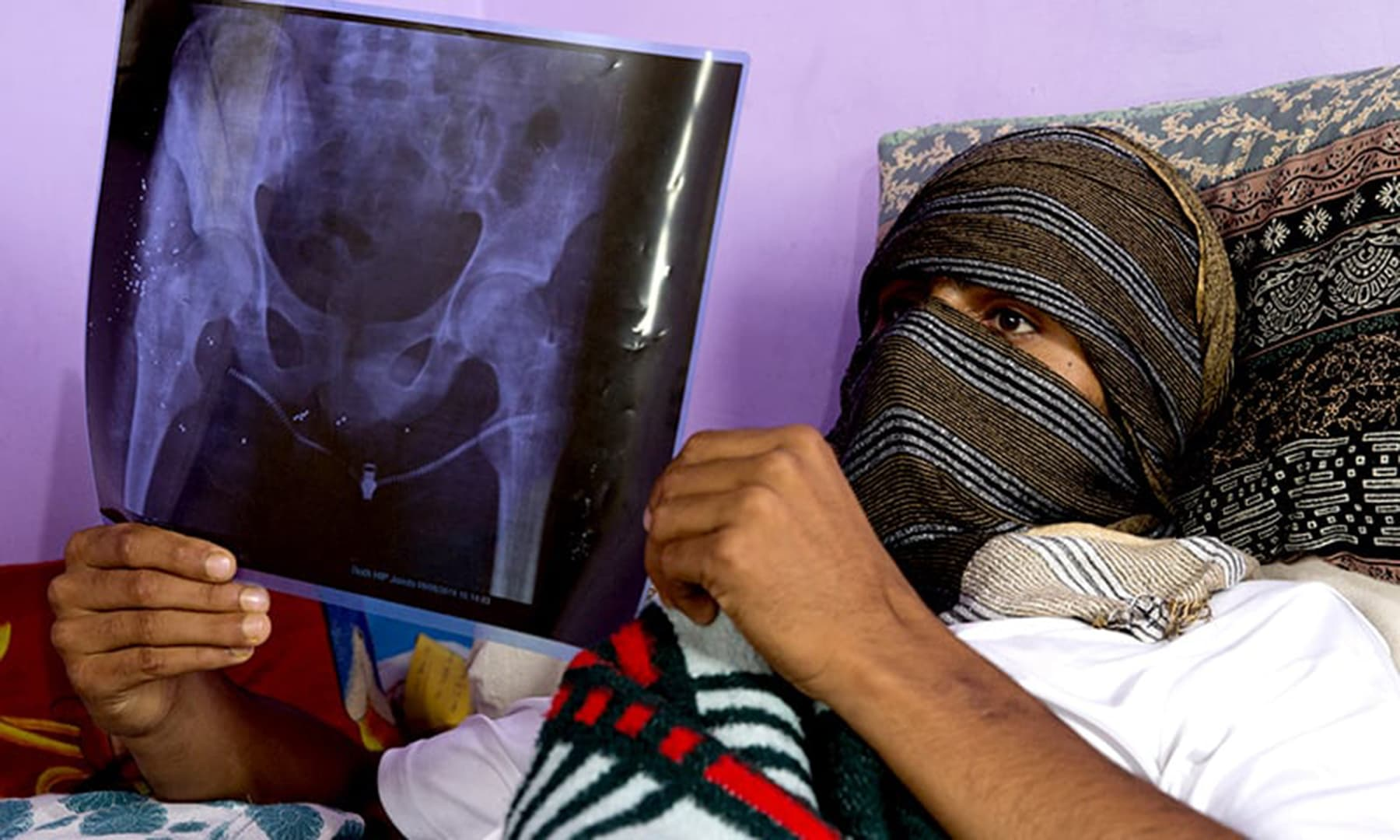 A Kashmiri boy, who was injured a week prior, holds up an X-Ray showing pellet injuries in his leg, as he recovers at his home in Srinagar, on August 17. — AP