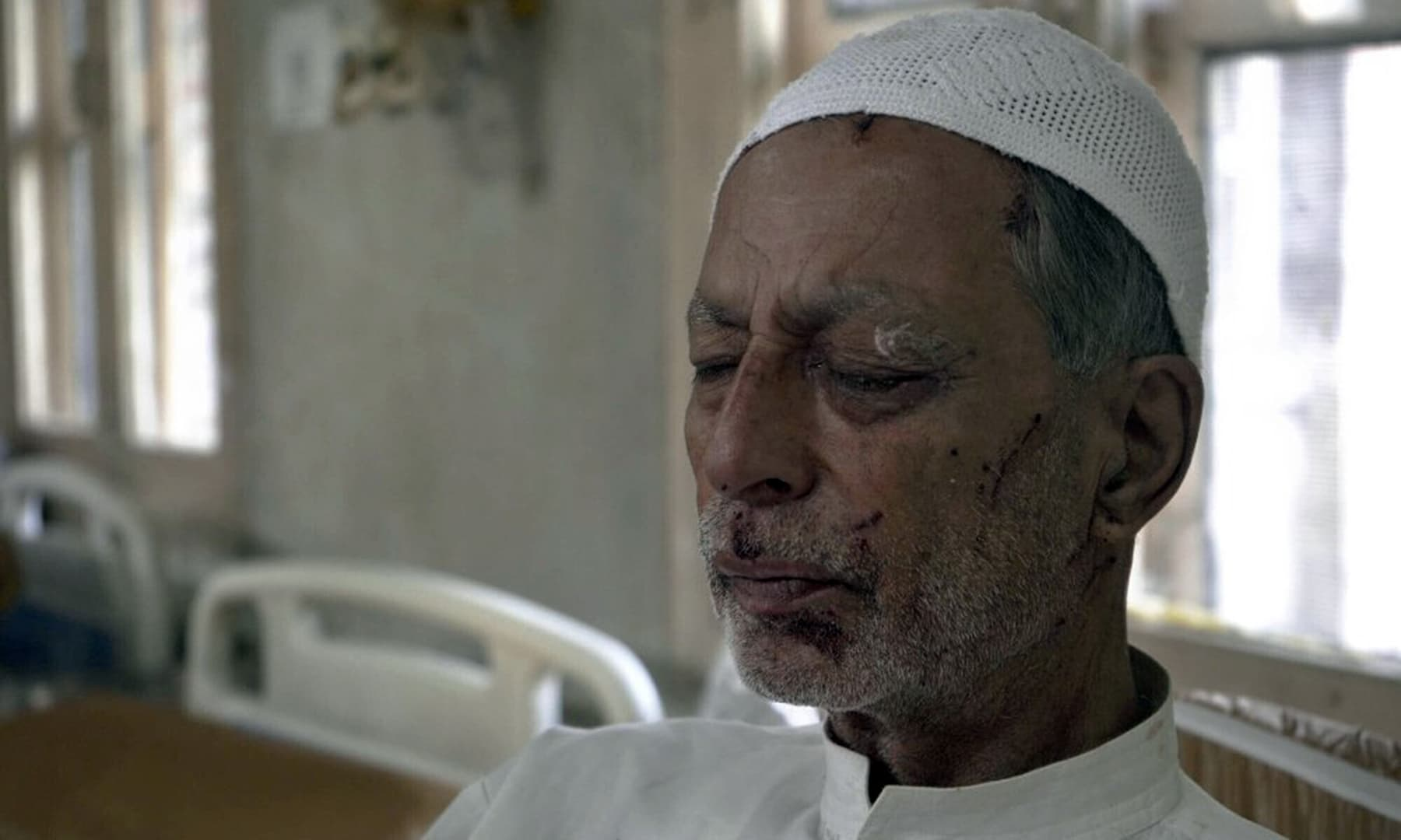 Mohammad Siddiq, 70, who was wounded a day before recovers inside a hospital in Srinagar on August 18. The elderly Kashmiri man says he was wounded when an Indian police man fired a pellet gun at him while returning home from a mosque, badly damaging his left eye. — AP