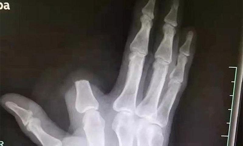 جب سانپ کے کاٹنے پر کسان نے اپنی انگلی ہی کاٹ دی