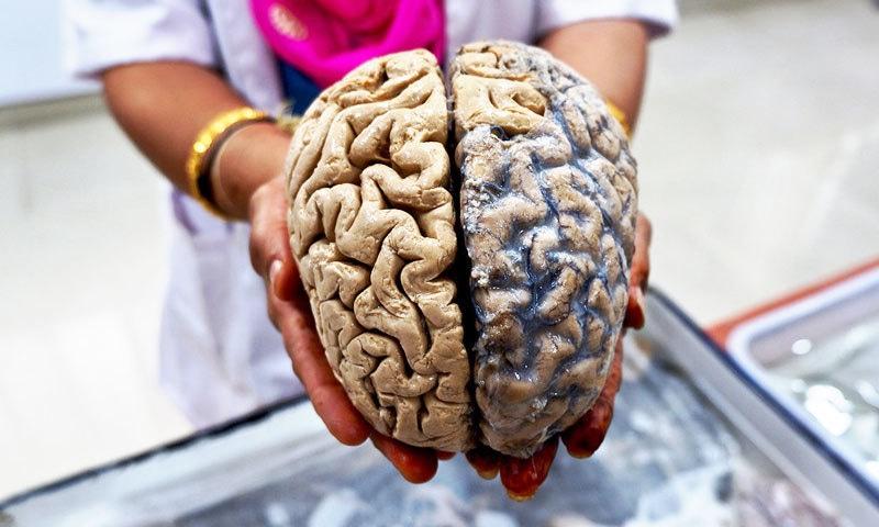 بھارتیوں کے دماغ دنیا میں سب سے چھوٹے: تحقیق