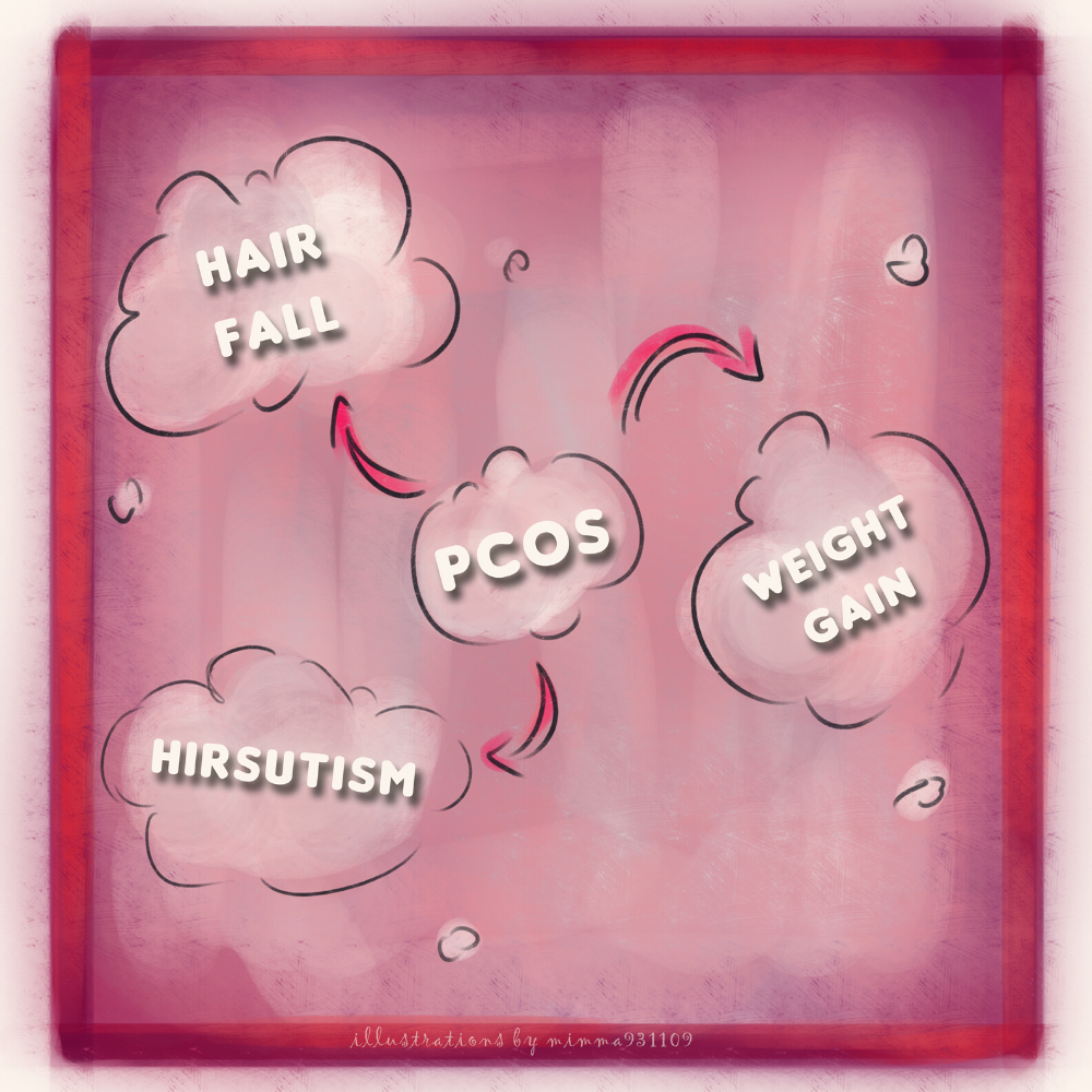 The symptoms of PCOS.