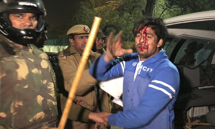 Policemen detain an injured student outside Jamia Millia Islamia university in Delhi during a protest against Citizenship Amendment Act on Sunday. — AP