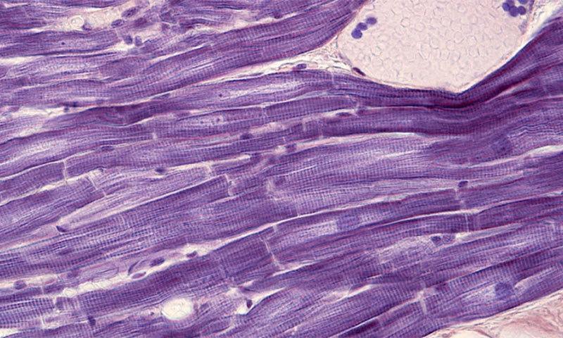 دل کے پٹھوں کے خلیات مائیکرو اسکوپ میں ایسے نظر آتے ہیں — شٹر اسٹاک فوٹو