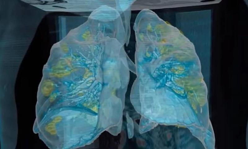 نئے کورونا وائرس سے پھیپھڑوں پر مرتب اثرات ظاہر کرنے والی ویڈیو