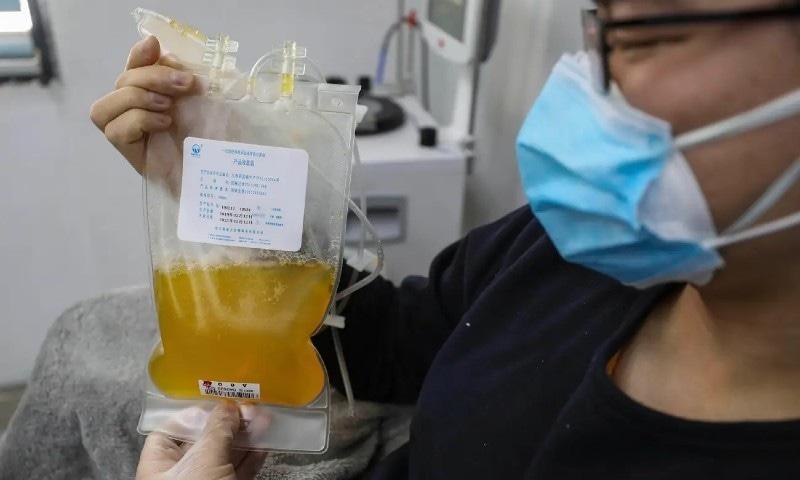 کووڈ 19 کے مریضوں کیلئے تجرباتی بلڈ پلازما تھراپی میں مزید پیشرفت