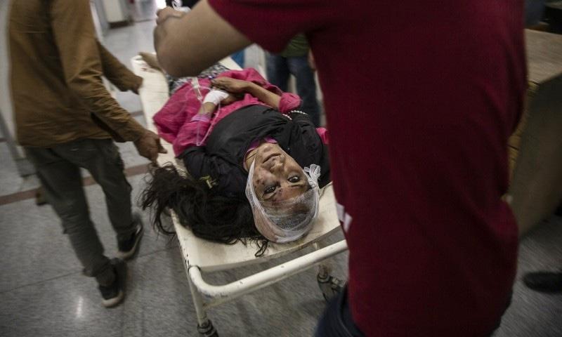 بھارتی فوج کے تشدد سے زخمی ہونے والی خاتون کی تصویر ڈار یاسین نے جون 2019 میں سری نگر کے ہسپتال میں کھینچی تھی—فوٹو: اے پی