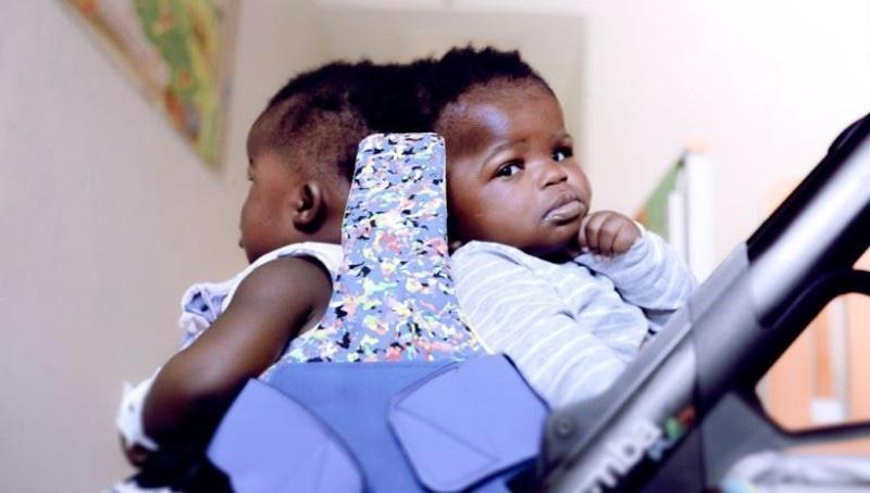 افریقا سے تعلق رکھنے والی دونوں بہنیں پیدائشی ایک دوسرے سے جڑی ہوئی تھیں—فوٹو: سی این این