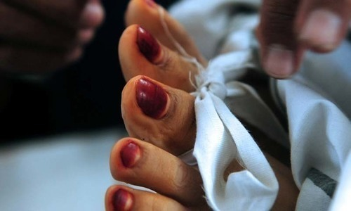 اسلام آباد: ہوٹل کی بالکونی سے گر کر ایک خاتون ہلاک، دوسری زخمی