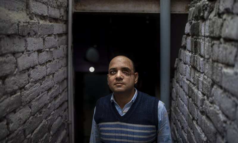 Muhammad Nasir Khan, who was shot by a Hindu mob during the February 2020 communal riots, poses for a photograph inside his home in North Ghonda, one of the worst riot-affected neighbourhood, in New Delhi, India. — AP