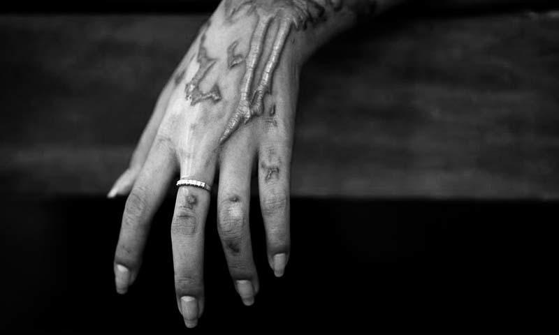 An acid attack survivor shows burn scars on her hand. — Reuters/file