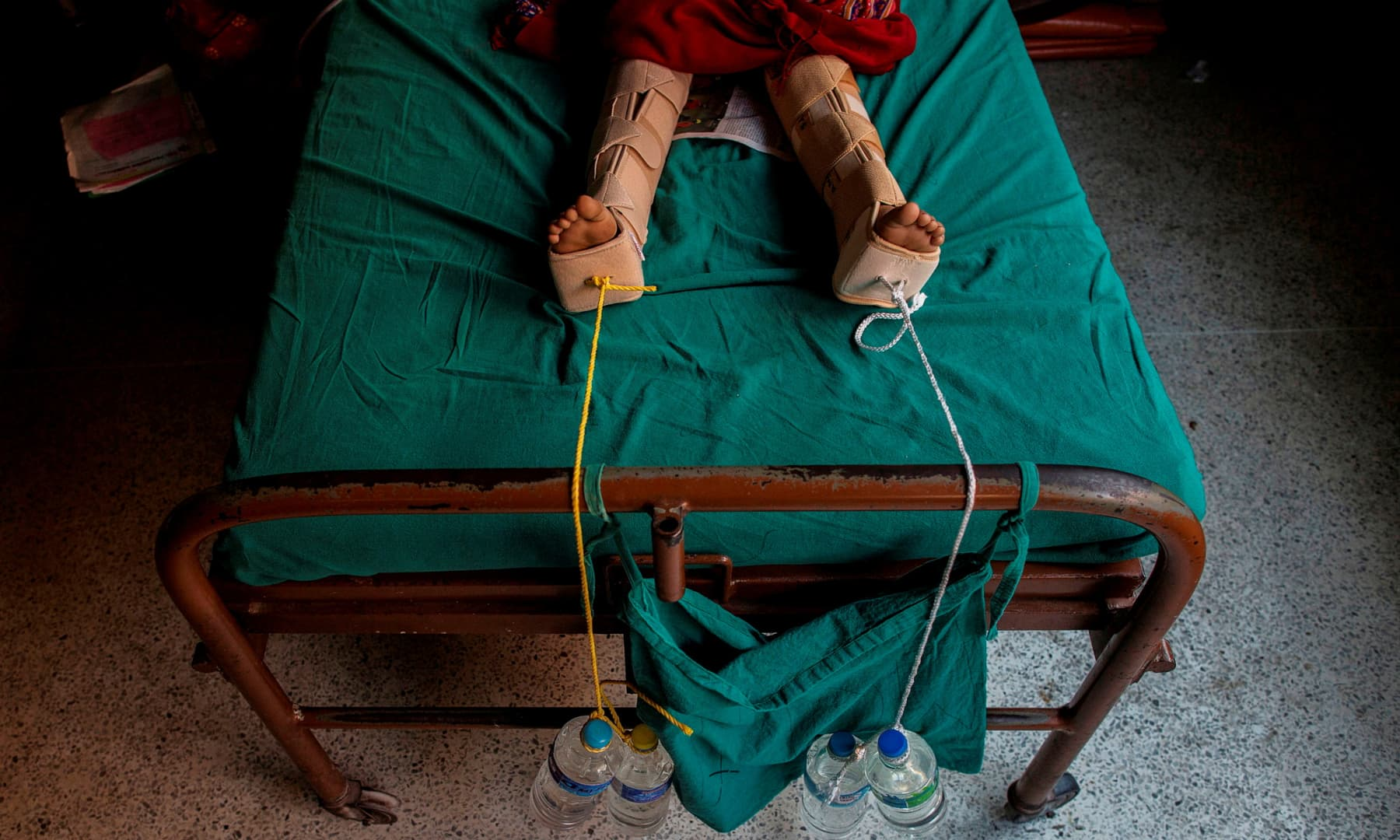 Ropes weighted down with water bottles are used to apply traction to the legs of an injured girl after she fractured them during an earthquake, at a hospital in Kathmandu, Nepal, April 29, 2015. — Reuters/Danish Siddiqui