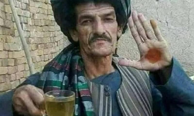 نذر محمد المعروف خاشا زوان افغانستان کے ایک مزاحیہ فنکار تھے —فوٹو: آر ٹی اے