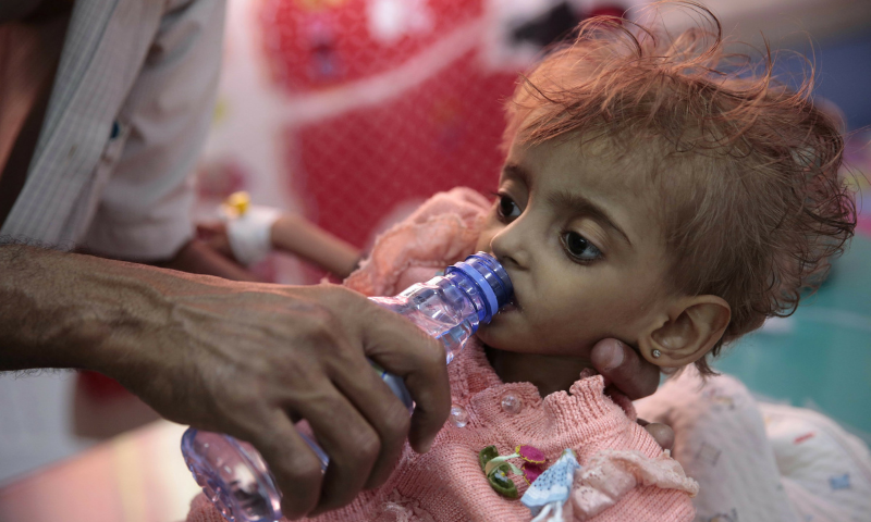 In this file photo, a father gives water to his malnourished daughter at a feeding centre in a hospital in Hodeida, Yemen. — AP