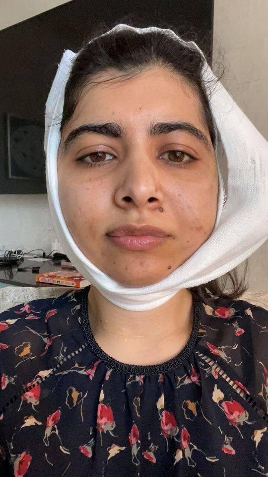 ان کی حالیہ سرجری رواں ماہ کی 9 تاریخ کو ہوئی—فوٹو: ملالہ پوڈیم