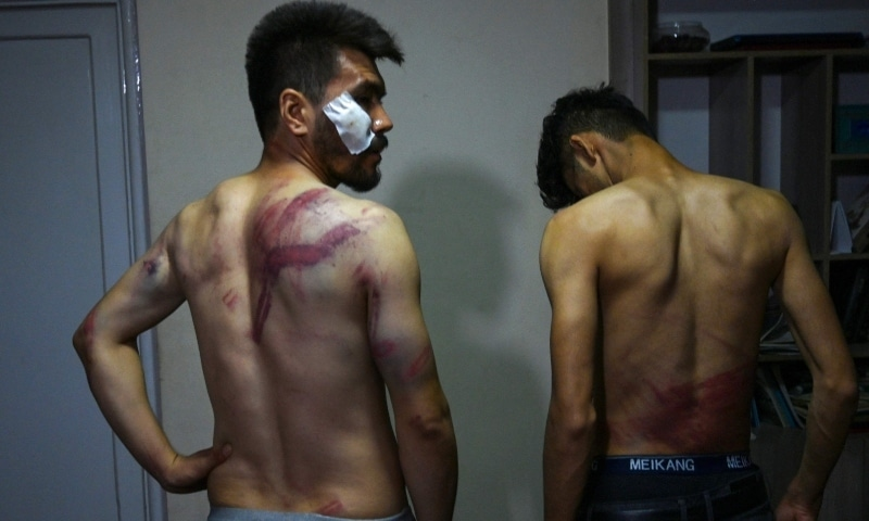 In this picture taken on September 8, Afghan newspaper Etilaatroz journalists Neamat Naqdi (L) and Taqi Daryabi show their wounds in their office in Kabul after being released from Taliban custody. — AFP