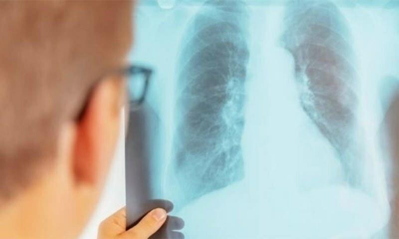 یہ بات عالمی ادارہ صحت کی جانب سے جاری رپورٹ میں سامنے آئی  — شٹر اسٹاک فوٹو