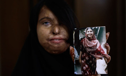 Acid violence: Laws must meet action