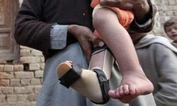 First polio case of new year reported from Tank