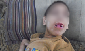Deformities in Charsadda: Cousin marriages, and the heavy price children pay