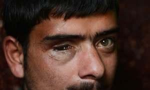Will the pellet gun victims in Kashmir ever regain their eyesight?