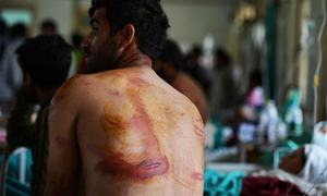 Hospital in India-held Kashmir filled with beating, shooting victims