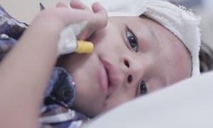 سرکاری ہسپتال میں پیدائشی بہرے بچے کی پہلی سرجری کامیاب