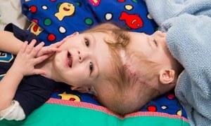 آپریشن کے بعد الگ کردہ سرجڑے بچے اب کیسے ہیں؟