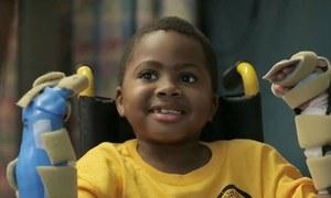 ٹرانسپلانٹ کیے گئے ہاتھوں والا بچہ کھیلنے کے قابل