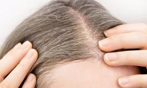 بالوں کو جوانی میں ہی سفید ہونے سے بچانا چاہتے ہیں؟